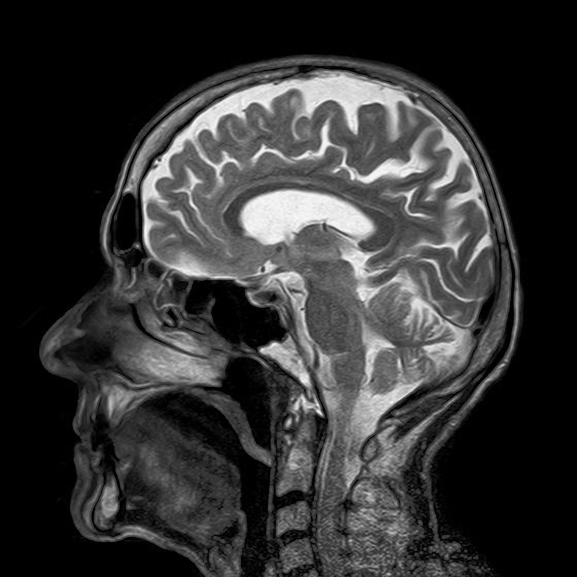 Coronavirus: What does Covid-19 do to the brain?